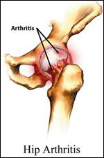 Hip Arthritis Treatment, Rockville, Maryland