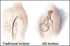 ASI (Anterior Supine Intermuscular) Hip Replacement, Rockville, Maryland