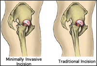 Minimally Invasive Hip Replacement, Rockville, Maryland